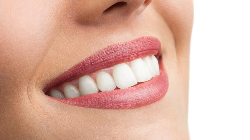 Implant Zircone et Produits Z-SYSTEMS DentalBio