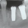 Pourquoi la céramique - DentalBio distributeur France de z-systems